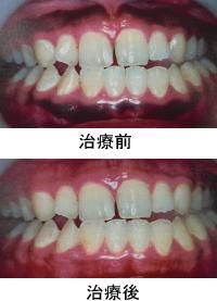 【ピーリング(上下) 歯ぐきのメラニン除去】
